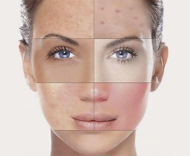 Huidtype gezichtsverzorging